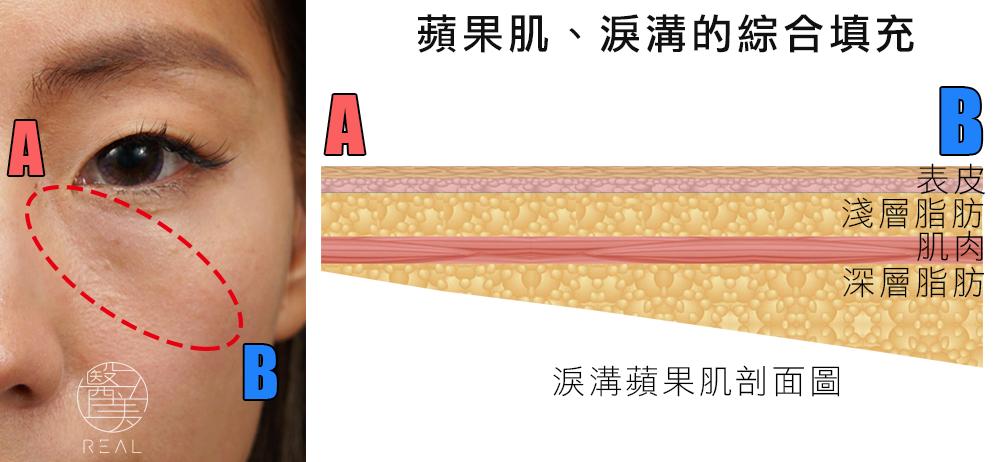 3D多層注射填補原理