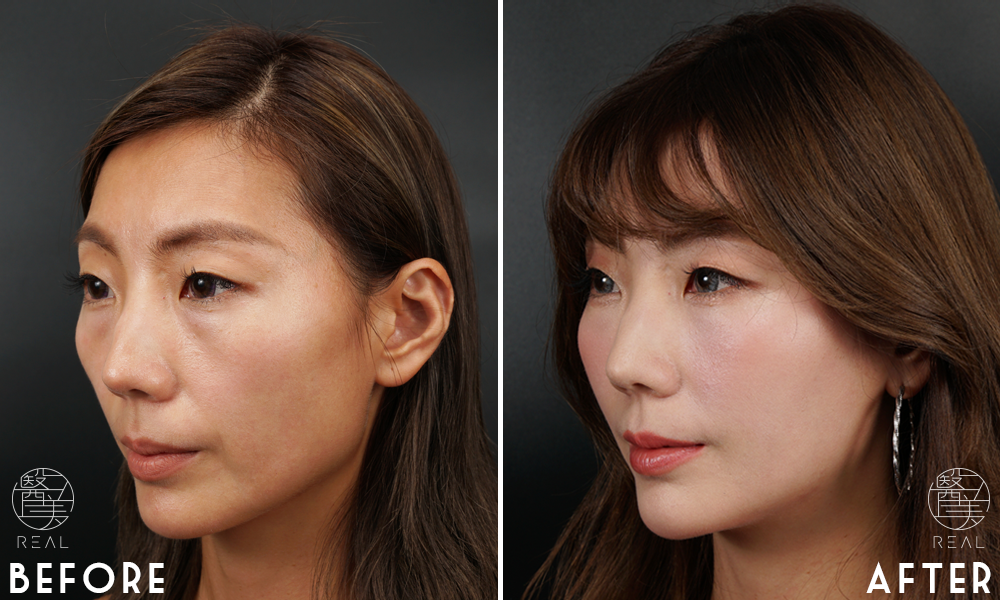 3D多層注射填補豐頰,填蘋果肌與淚溝效果