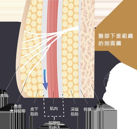 電音雙波拉皮拉提臉部老化肌膚剖面圖