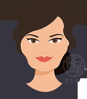 葫蘆臉治療方式雙波拉皮拉提