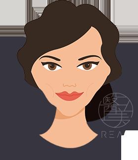 凹瘦臉治療方式雙波拉皮拉提