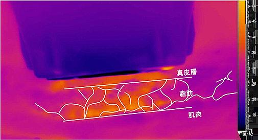 Thermage RF 電波拉皮拉提皮膚支持韌帶收縮