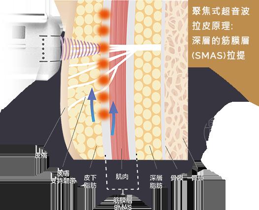 超音波拉皮拉提筋膜層收縮