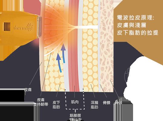 電波拉皮作用在脂肪層皮膚支持韌帶